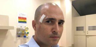 Στο νοσοκομείο μετά από ατύχημα ο Μπογδάνος (pic)