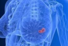 E. Φιλόπουλος: Ο επαγγελματικός καρκίνος 20 φορές πιο θανατηφόρος από τα εργατικά ατυχήματα