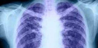 Αυξήθηκαν τις τελευταίες τρεις δεκαετίες οι θάνατοι λόγω χρόνιων παθήσεων των πνευμόνων