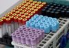 Έρευνα: Ασυμπτωματικοί το 40% των ασθενών με Covid-19